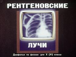 Диафильм Рентгеновские лучи бесплатно
